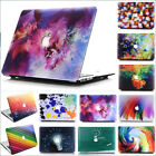 "Colorful Paint Printed Matte Case Skin for MacBook AIR PRO 11"" 13"" 15"" Touch Bar"