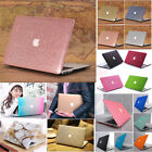 """Silk Glitter Leather Shiny/ Marble Matte Hard Case for MacBook AIR 11""""11.6""""A1465"""