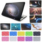 "2in1 Art Printing Galaxy Matte Hard Case Shell for MacBook AIR PRO 11"" 13"" 15"""