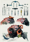 ML22 Vintage 1800's Medical Trepanning Trephining Surgical Poster Re-Print A4