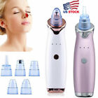 Electric Blackhead Vacuum Suction Acne Remover Face Pimple Pore Comedone Clean